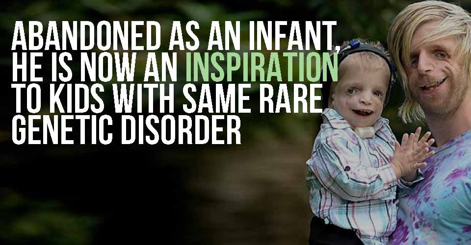 Abandoned As An Infant, He Is Now An Inspiration To Kids With Same Rare Genetic Disorder