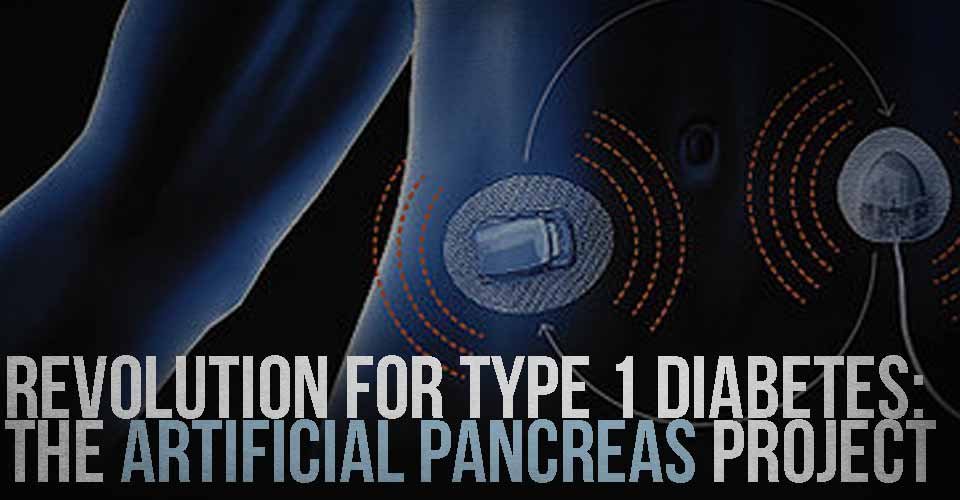 Revolution for Type 1 Diabetes: The Artificial Pancreas Project