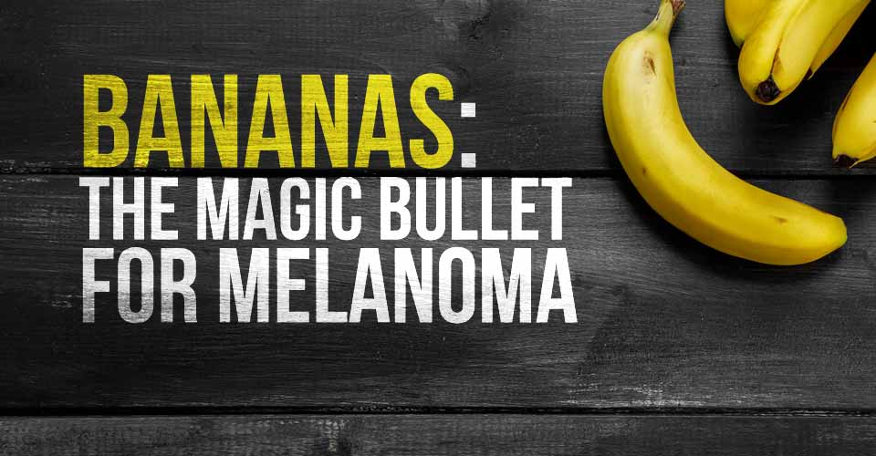 Bananas: The Magic Bullet for Melanoma
