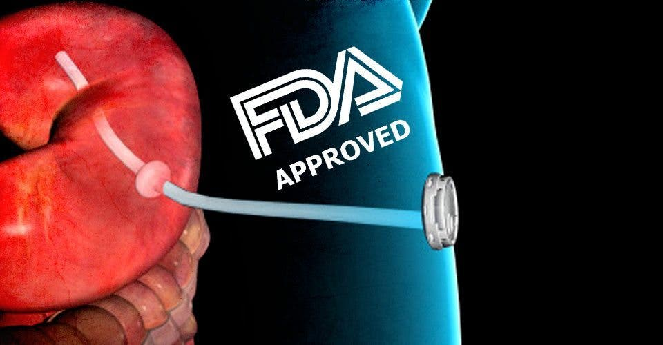 The FDA Just Approved This Horrific Weight-Loss Device