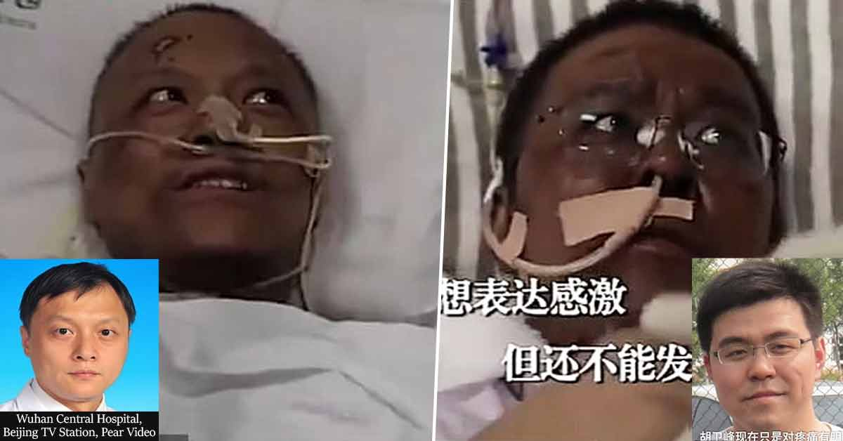 Chinese Doctors Critically ill With COVID-19 Wake Up With Darkened Skin